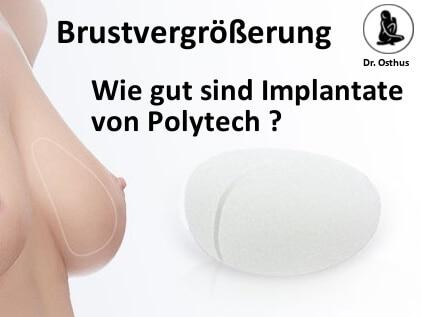 Qualität der Implantate von Polytech zur Brustvergrößerung